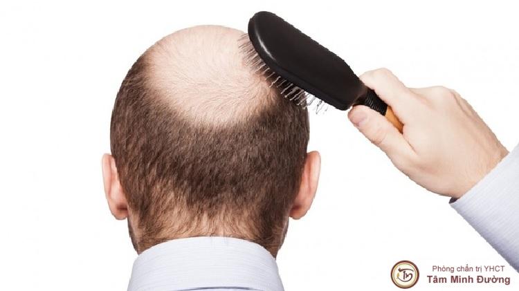 Rụng tóc nhiều biểu hiện đàn ông yếu sinh lý