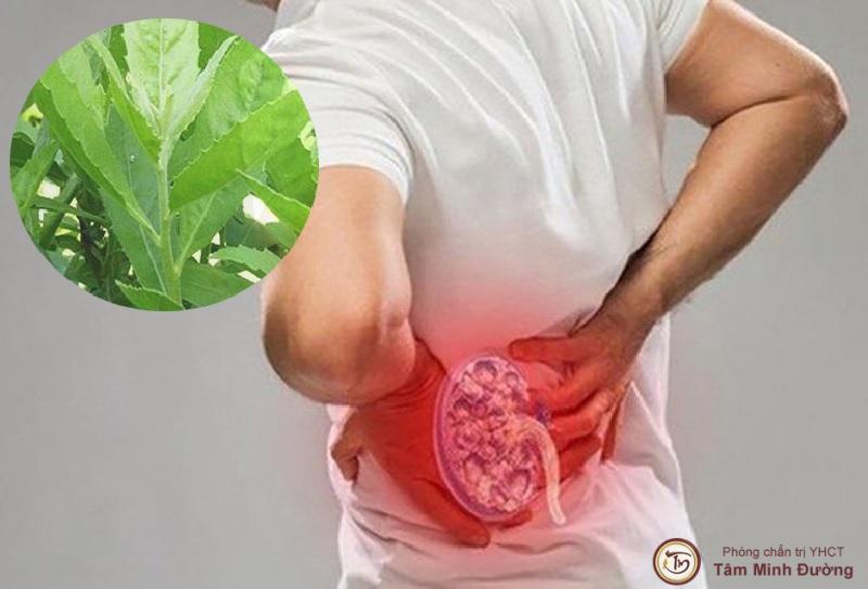 Bài thuốc chữa sỏi thận từ cây từ bi