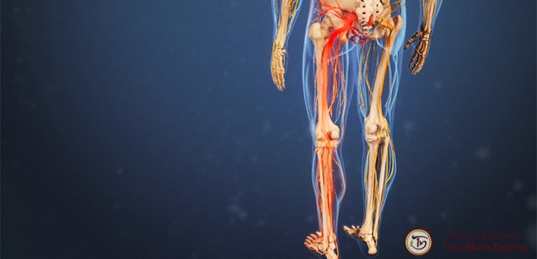Đau nhức từ mông xuống bắp chân