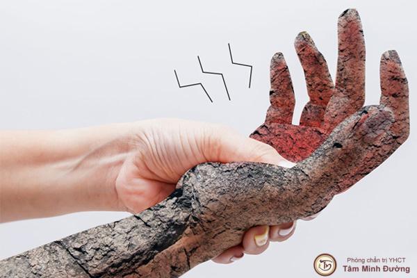 thoái hóa đốt sống cổ gây tê tay