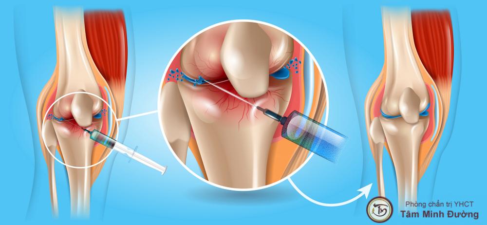 điều trị thoái hóa khớp gối bằng chất nhờn